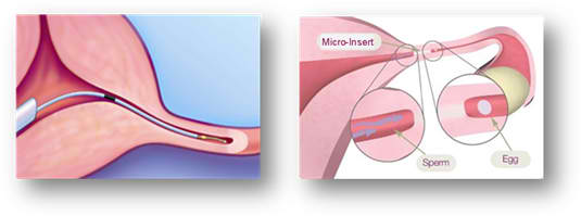 Essure Replaces Tubal Ligation for Female Sterilization