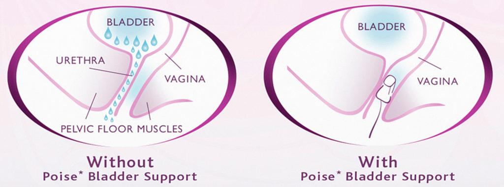 Impressa Vaginal Insert