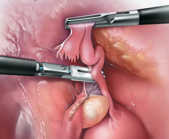 Removing Fallopian Tubes Opportunity To Reduce Ovarian Cancer